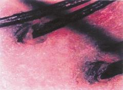 炎症した頭皮。赤い皮膚は炎症しています。炎症すると熱を持ち白髪にもなりやすいです。